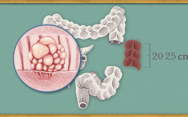 sigmoidresectie
